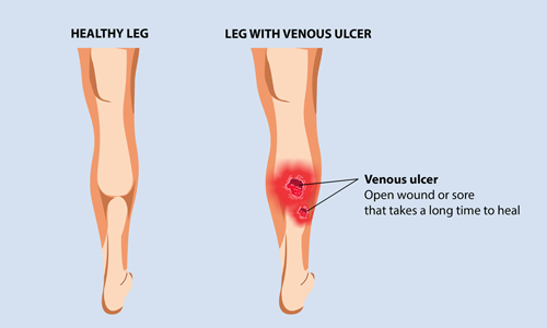 What are Venous Leg Ulcer|HEAVYLEGS IN